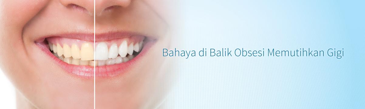 Bahaya Di Balik Obsesi Memutihkan Gigi Systema Advanced Oral