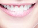 Kenali Berbagai Metode Pemutihan Gigi
